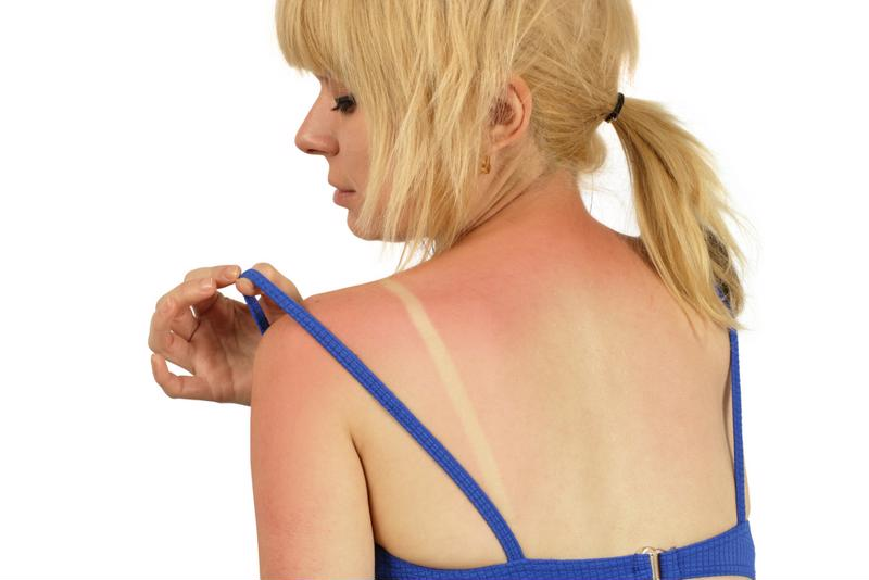 Your skin is a hardy organ, but even it can't stand up to hours in the sun.