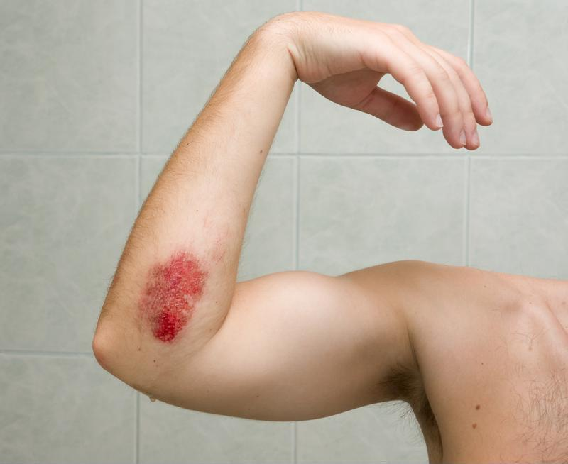 Cuts like this might look nasty, but infections make them even worse.